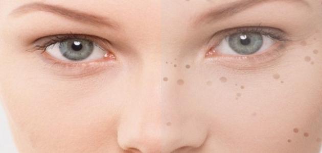 صورة البقع السوداء في الوجه , طرق ازالة البقع السوداء من البشرة