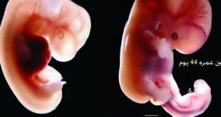 صورة شكل الجنين في الشهر الاول من الحمل , اعراض الحمل في الشهر الاول