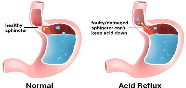 صورة علاج التهاب المعدة بالاعشاب , وصفات تخلصك من التهاب المعده