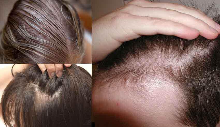 صورة علاج لتكثيف الشعر , طرق علاجيه للشعر المتساقط