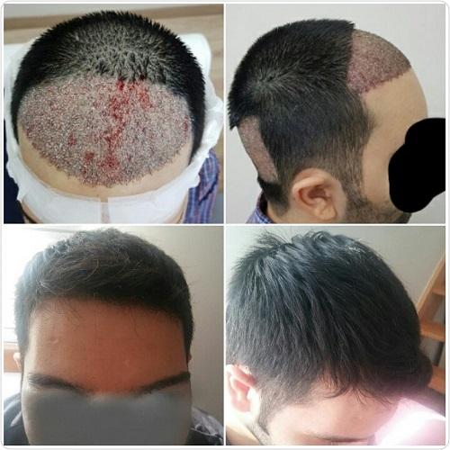 صورة زراعة الشعر بدون حلاقة , هل عملية زرع الشعر مفيده
