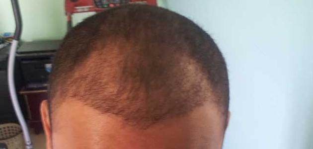 صورة زراعة الشعر بدون حلاقة , هل عملية زرع الشعر مفيده 2783 6