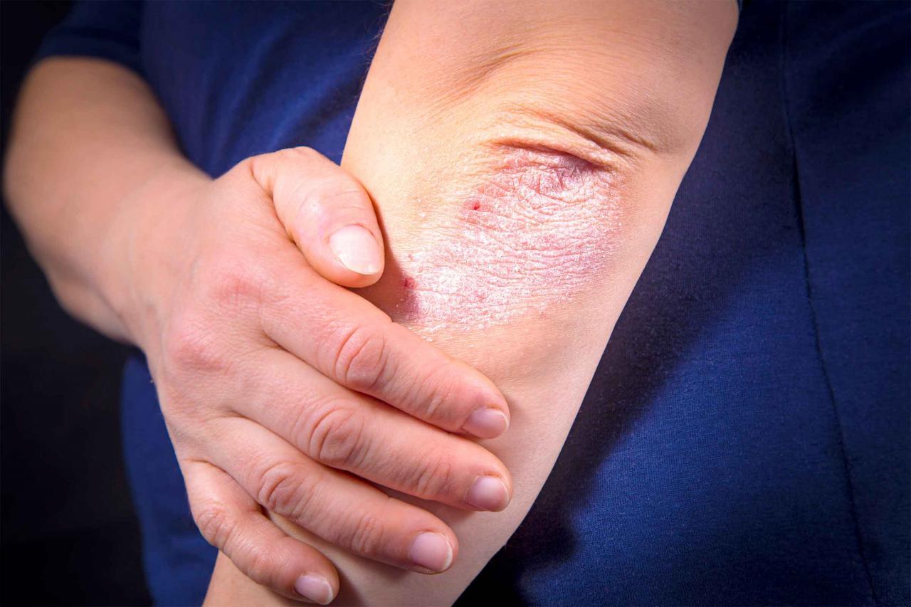 صورة اعراض نقص الزنك , ما الذي يشير الي نقص الزنك