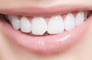 صورة كسر الاسنان في الحلم , تفسير الاسنان في المنام