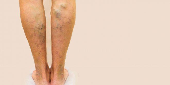 صورة علاج دوالي القدمين , اسهل العلاجات للدوالي