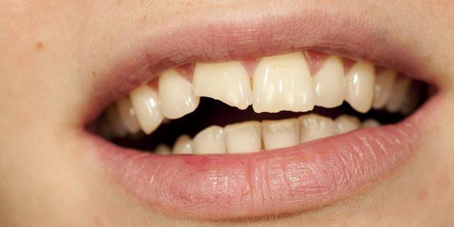 صورة تفسير حلم تكسر الاسنان , تاويل تكسر الاسنان في المنام