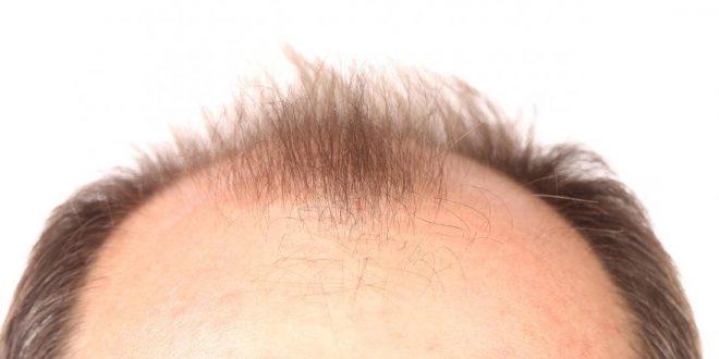 صورة احياء بصيلات الشعر الميتة , اسهل طريقة اعلاج بصيلات الشعر الميتة