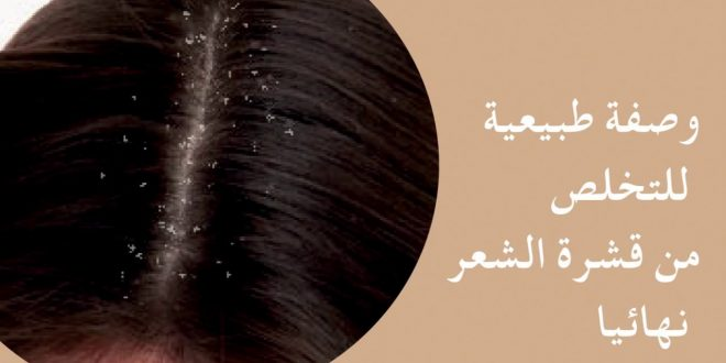 صورة كيفية التخلص من قشرة الشعر , قشرة الشعر و التخلص منها نهائيا
