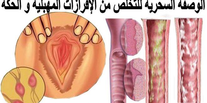 صورة علاج افرازات المهبل البيضاء , مشكلة افرازات المهبل و حلها
