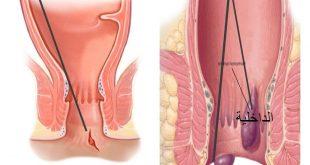 صورة احسن علاج للبواسير , نصائح فعاله للامراض المزعجه