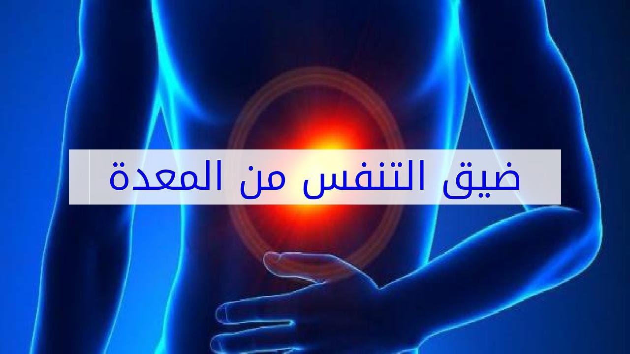 صورة اعراض علاج جرثومة المعدة , مرض الجرثومة الملوية البوابيه