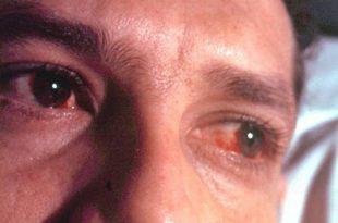 صورة ما سبب احمرار العين , بعض الاسباب غير المتوقعة لاحمرار العين