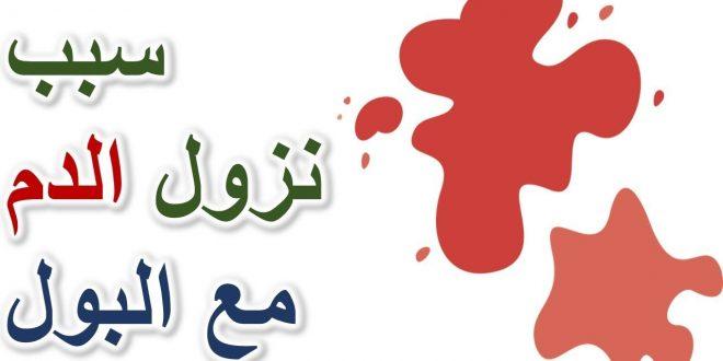 صورة نزول دم مع البول عند الرجال , اسباب الاصابة بالبيلة الدموية