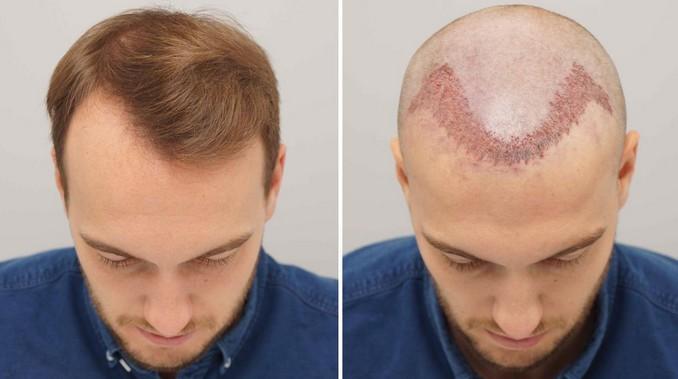 صورة احدث طرق زراعة الشعر 2019 , تقنيات زراعة الشعر الحديثة