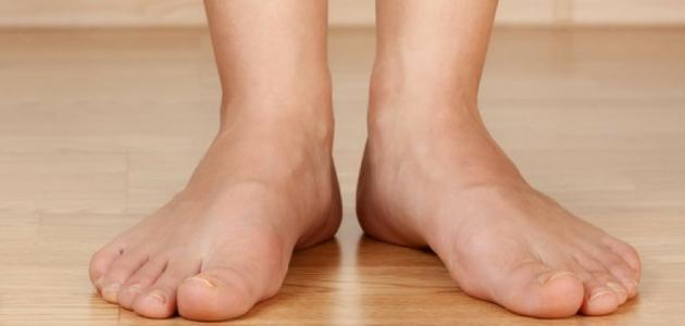 صورة اسباب انتفاخ القدمين , مشكلات صحية قد تكون السبب فى انتفاخ القدمين