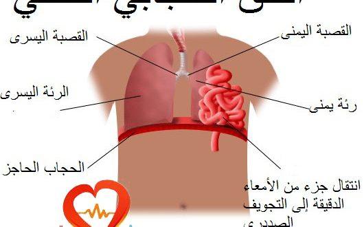 صورة علاج فتق الحجاب الحاجز بالاعشاب , علاجات للجسم بالاعشاب