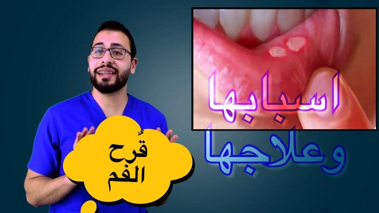 صورة معقول تكون دى المنتجات دى هى علاج قرح الفم , علاج تقرحات الفم