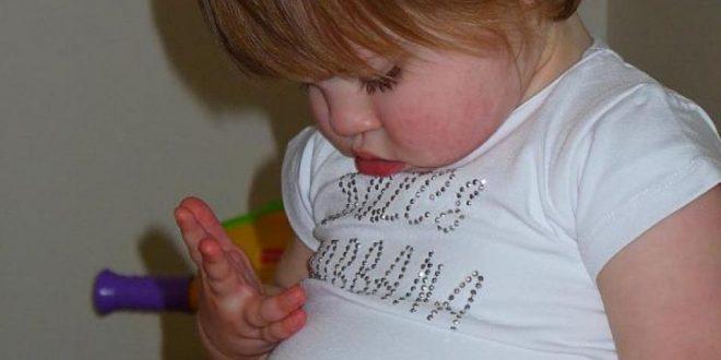 صورة علاج ظهور الكرش عند الاطفال,الكرش عند الاطفال