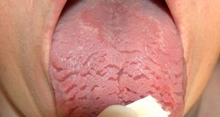 صورة تعرف على انواع التهاب اللسان,علاج التهاب اللسان